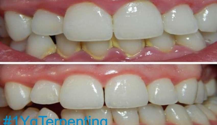 Menghilangkan Karang Gigi, Mencegah dan Caranya