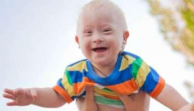 Cara Mudah Mengatasi Down Syndrome Pada Anak