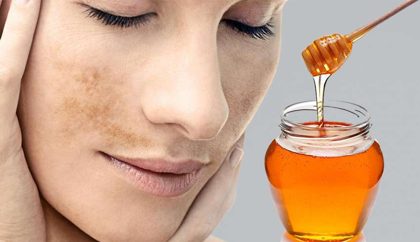 8 Cara Menghilangkan Flek Hitam di Wajah dengan Madu Alami
