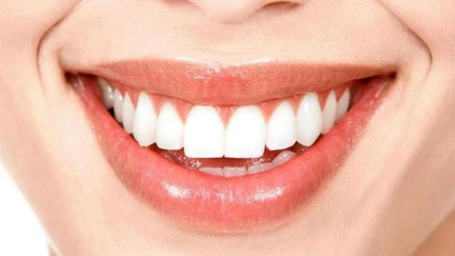 Cara Cepat Memutihkan Gigi Yang Kuning