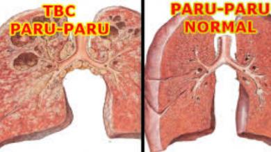 Photo of Diagnosis, Perawatan dan Pengobatan Penyakit TBC