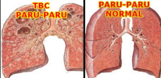 Diagnosis, Perawatan dan Pengobatan Penyakit TBC