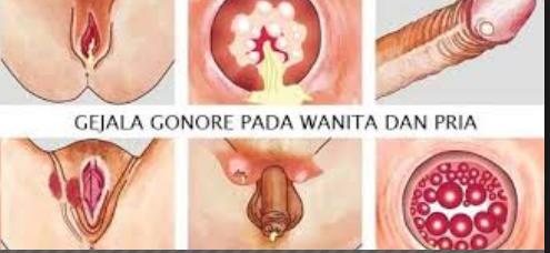 Diagnosis dan Komplikasi Penyakit Gonore