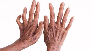 Photo of Diagnosis dan Pengobatan Kusta