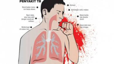 Photo of Tanda, gejala dan Penyebab Penyakit TBC